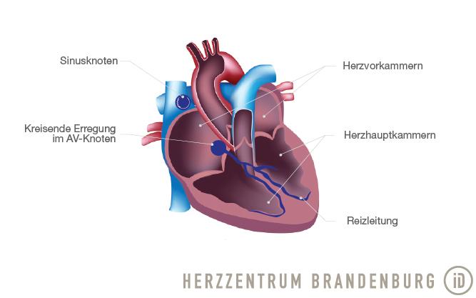 Av Nodal Reentrant Tachycardia Avnrt Brandenburg Heart Center