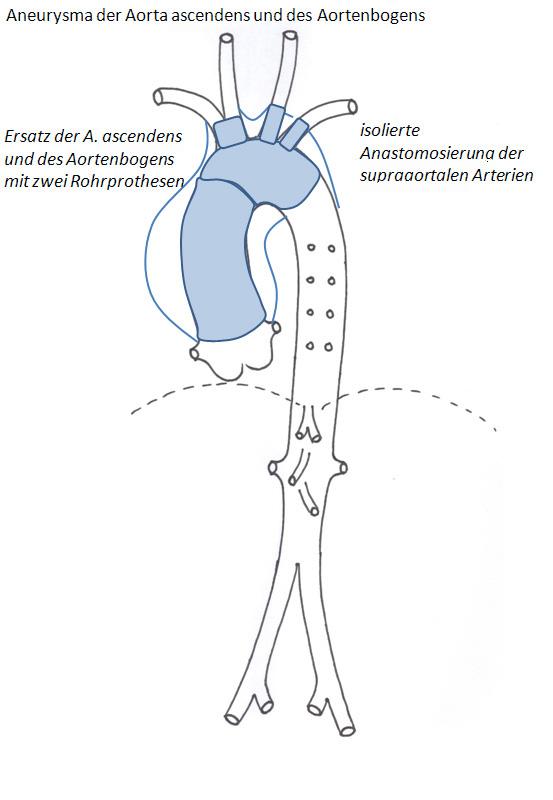 Aorten-Prothese | Herzzentrum Brandenburg bei Berlin